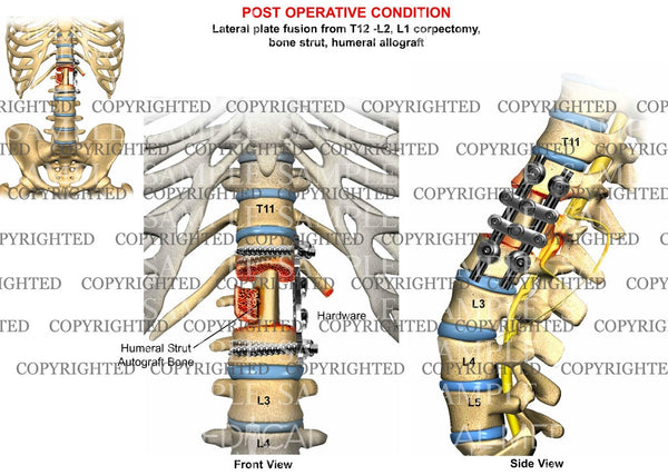 Post operative condition of T12-L2 Vertebral arthrodesis