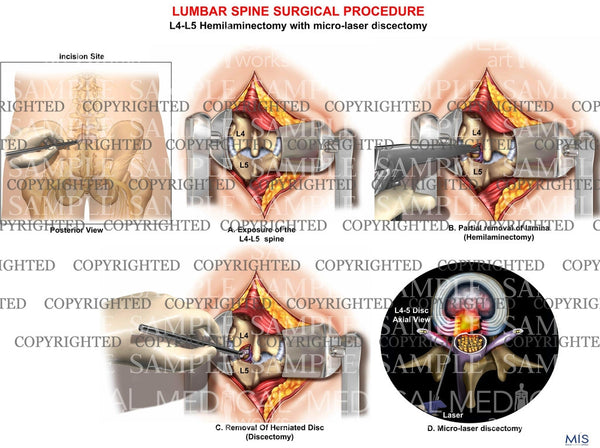 Lumbar surgery hemilaminectomy