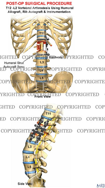 T12 -L2 Vertebral Arthrodesis post-op