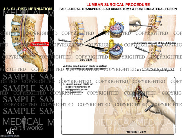 Lumbar surgical procedure on L5-S1