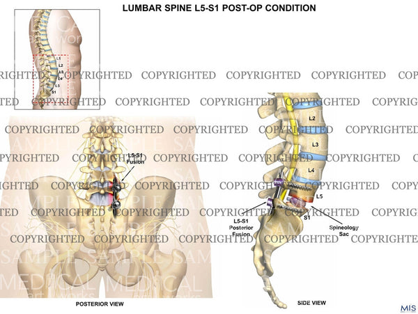 Post operative lumbar surgical procedure on L5-S1