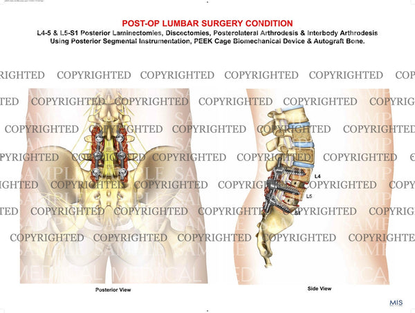Lumbar surgical procedure post-op