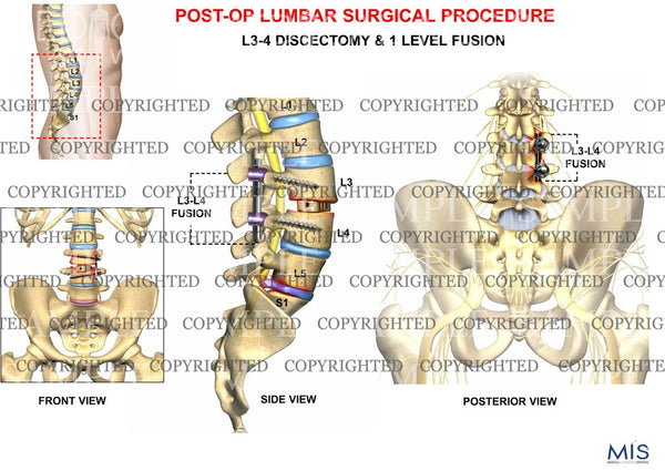 Post operative lumbar surgical procedure 2