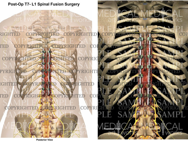 Posterolateral Spinal Fusion post operative
