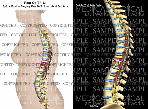Posterolateral Spinal Fusion lateral