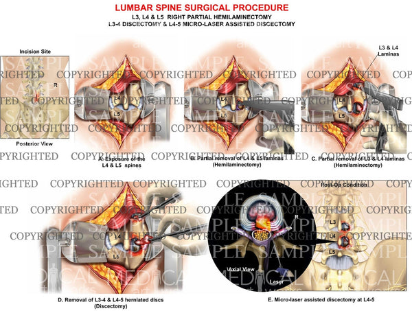 Lumbar spine hemilaminectomy