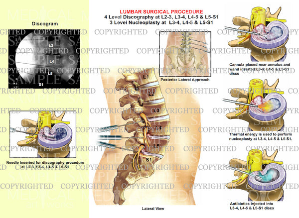 Lumbar surgical procedure discography nucleoplasty