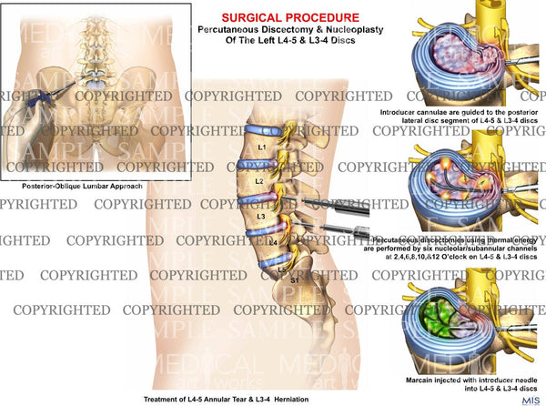 L2 3 L3 4 Lumbar Spine Discectomy And Nucleoplasty Medical Art