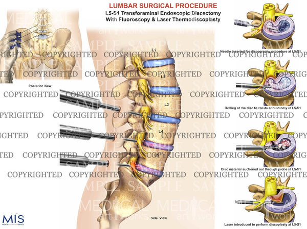 Lumbar spine endoscopic discectomy