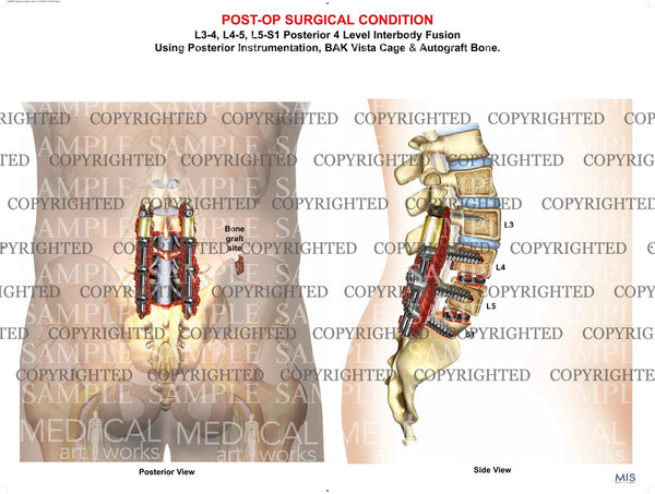 Lumbar Spine Decompression laminectomy post-op