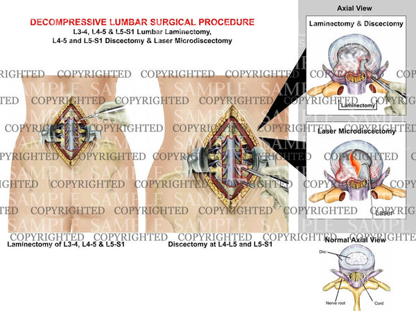 Decompressive lumbar Surgical Procedure