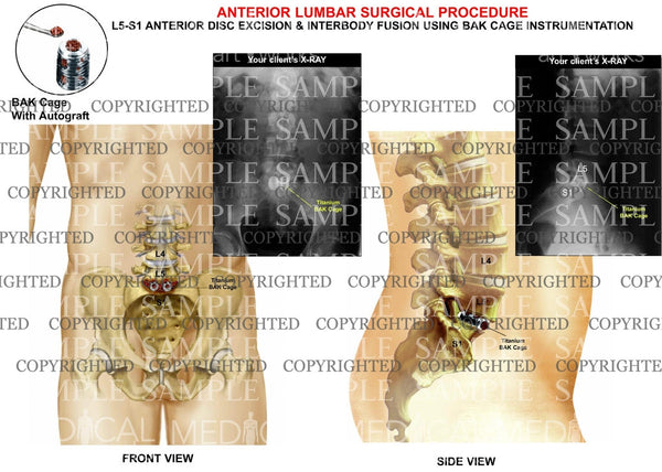 Post operative condition of lumbar surgical replacement with x-rays