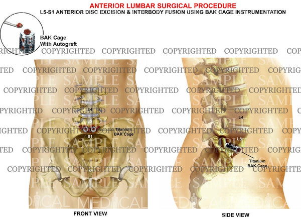 L5-S1 Anterior lumbar interbody fusion and discectomy