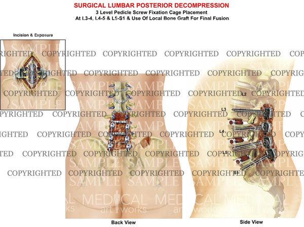 Surgical lumbar Posterior Decompression