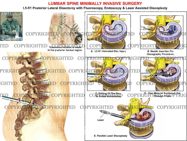 L5-S1 Lumbar posterior minimally invasive surgery