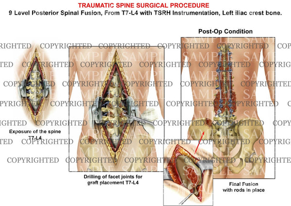 9 Level  - T7-L4  Posterior lumbar spinal fusion