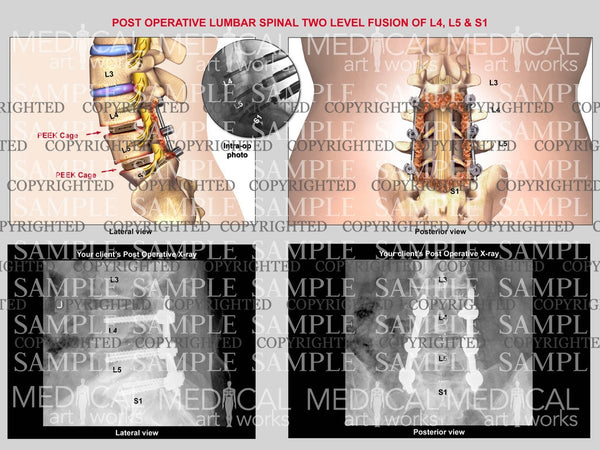 2 level - L4, L5, S1,  Lumbar interbody fusion with post-op x-rays.
