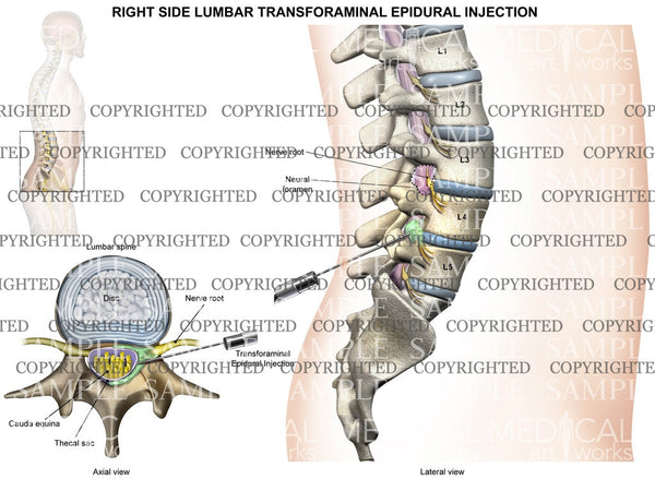 L4-5 Right side lumbar transforaminal epidural injection - Male