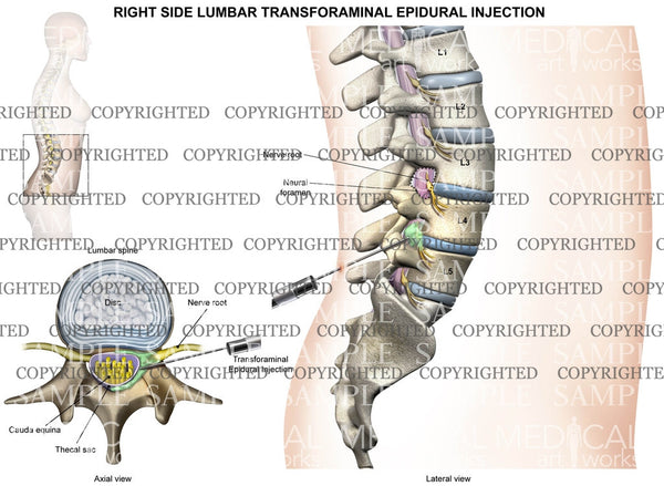L4-5 Right side lumbar transforaminal epidural injection - Female