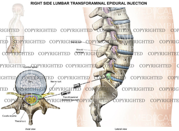L5-S1 Right side lumbar transforaminal epidural injection - Male