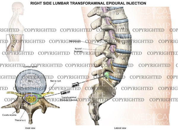 L5-S1 Right side female lumbar transforaminal epidural injection