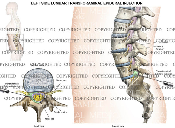 L5-S1 Lumbar transforaminal epidural Injection - left side - female