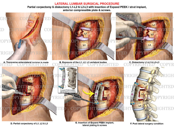2 level - Lumbar lateral surgical procedure and fusion