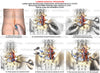 1 Level - L4-S1 Lumbar interbody fusion surgical procedure - Right sided L4-5 and L5-S1 Laminectomies and Discectomies