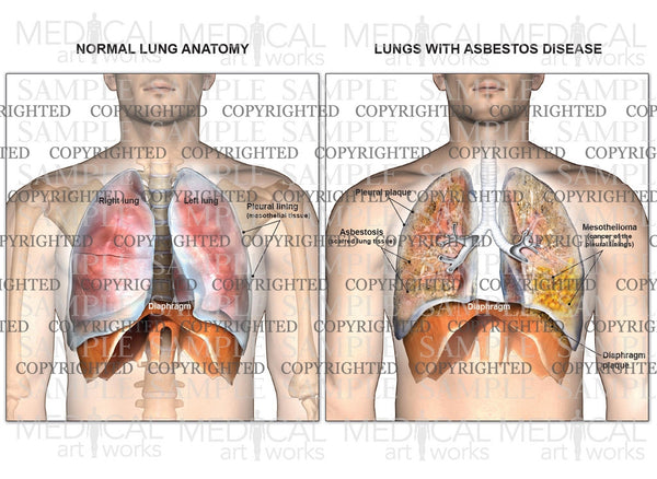 Lungs with asbestos disease compared with normal lungs