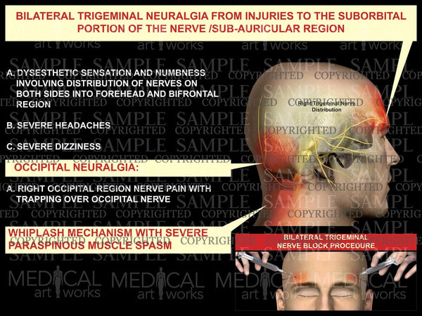 Right trigeminal nerve injury