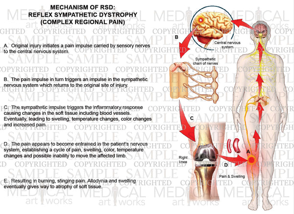 MECHANISM OF RSD (Right knee): Reflex Sympathetic Dystrophy (Complex Regional Pain)