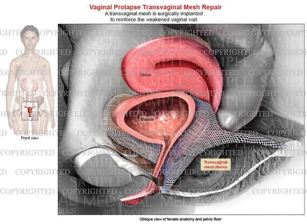 Transvaginal Mesh Repair of Vaginal Prolapse