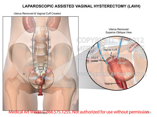 Laparoscopic assisted vaginal hysterectomy - LAVH