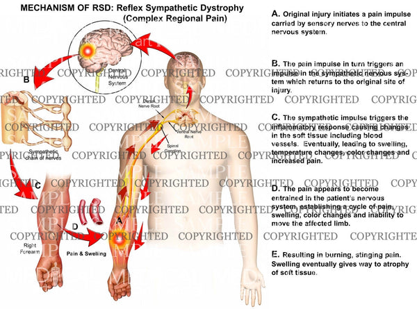 MECHANISM OF RSD: Reflex Sympathetic Dystrophy (Complex Regional Pain)