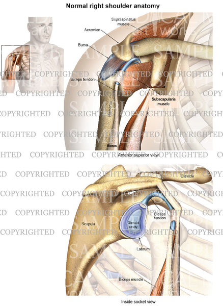 Normal right shoulder anatomy - oblique view - socket view