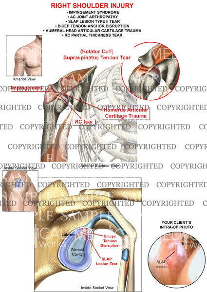 Right Shoulder Injury and trauma