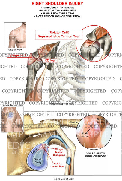 Right Shoulder RC, SLAP tears+impingement