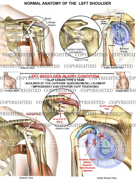 Left Shoulder Injury Condition 2