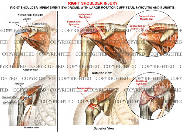 Right shoulder impingement syndrome - rotator cuff tear
