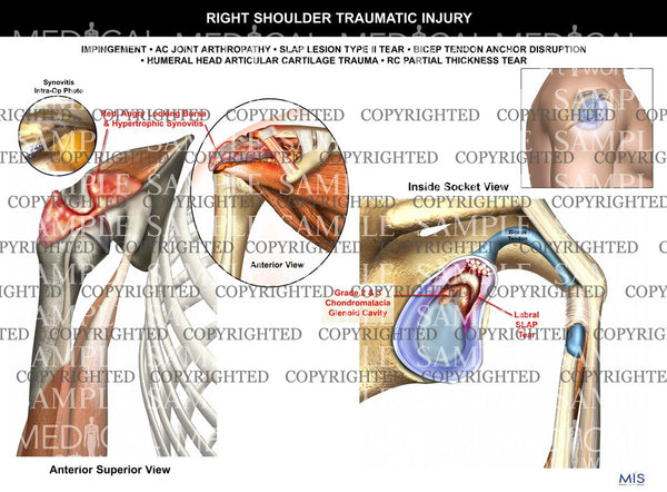 Right Shoulder traumatic Injury