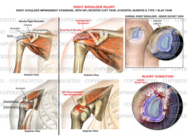 Right shoulder impingement syndrome - RC tear - Slap tear