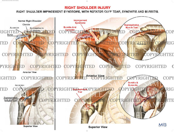Right Shoulder injury 1