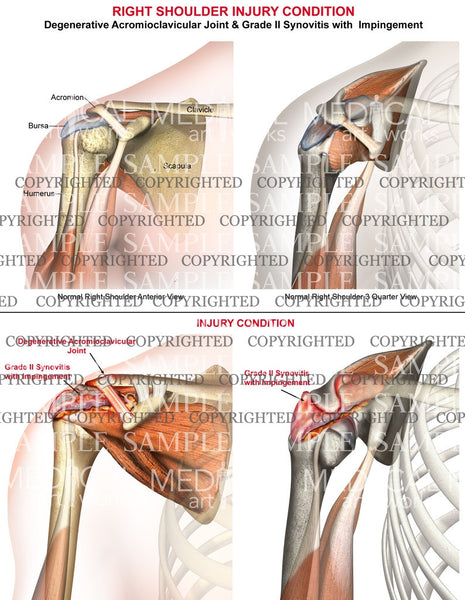 Right shoulder injury condition