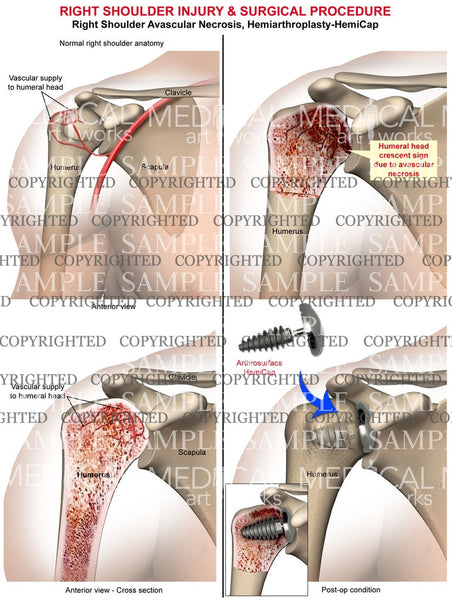 Right Shoulder injury & Surgical procedure