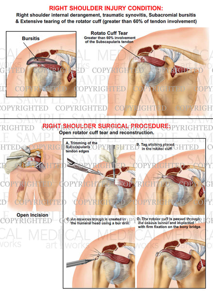 Right shoulder internal derangment - Surgical repair of RC tear