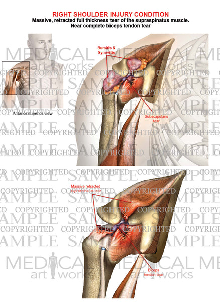 Right shoulder complete rotator cuff tear - Biceps tendon tear