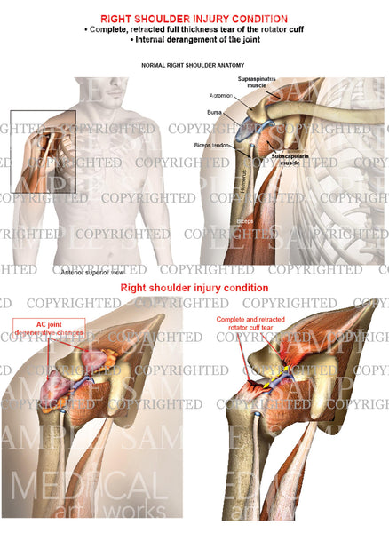 Right shoulder rotator cuff complete retracted tear - Internal derangement - Male
