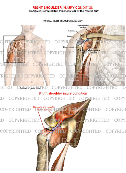 Right shoulder rotator cuff complete retracted tear - Female