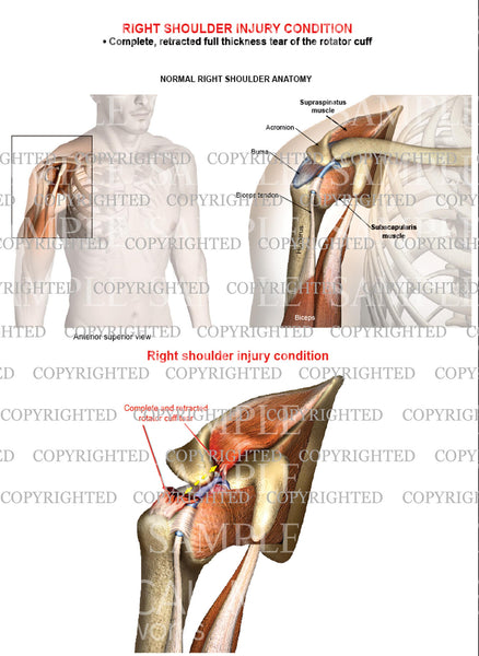 Right shoulder rotator cuff complete retracted tear - Male