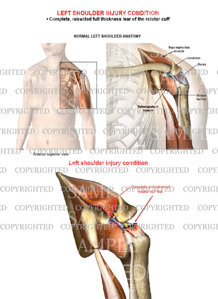 Left shoulder rotator cuff complete retracted tear - Female